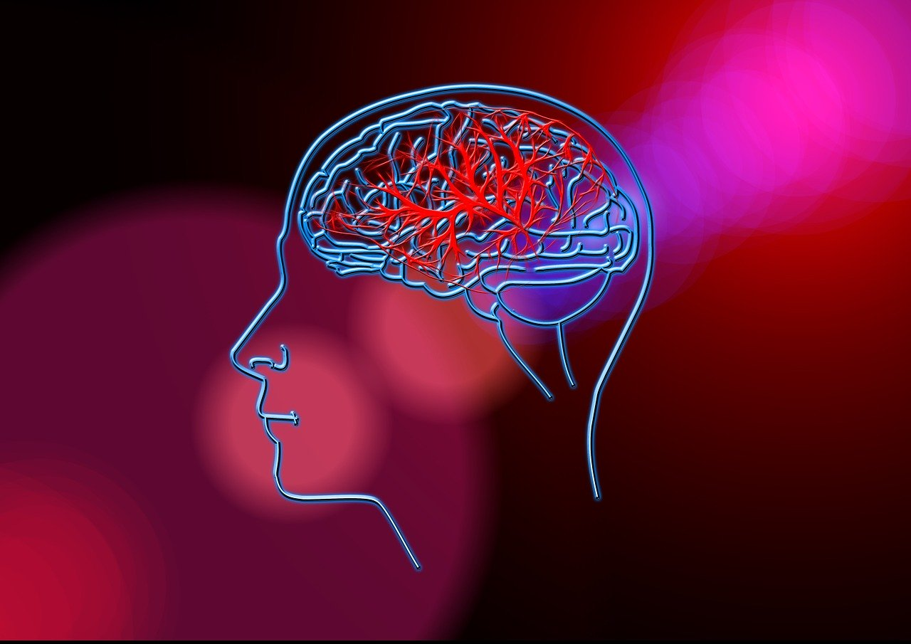 stroke, brain, blood circulation